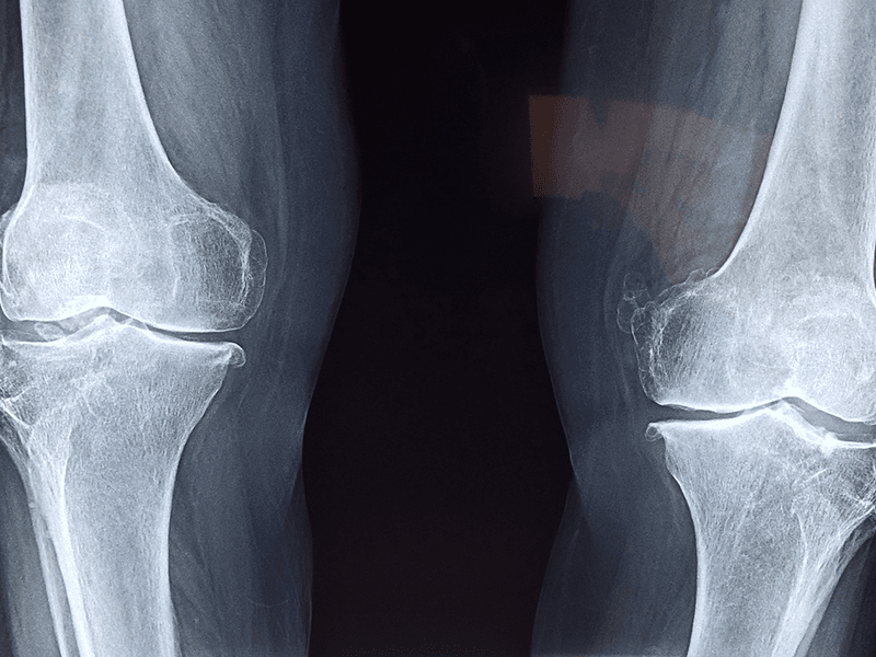 X-ray Healthy Knees